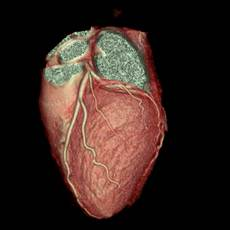 MRI of the heart